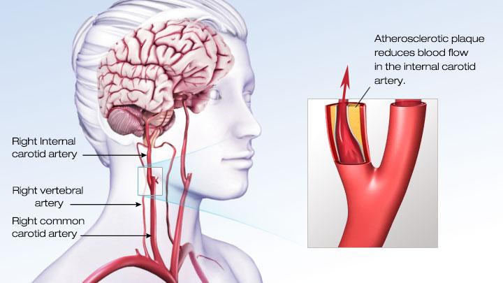 一个血块或大规模阻塞血管